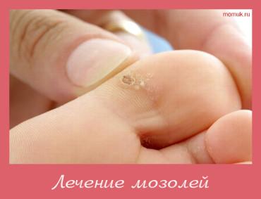 мозоль на ноге лечение